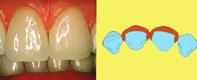dientes separados 3a