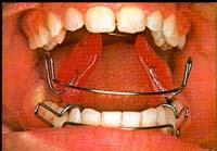 ortodon1